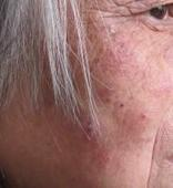 老年牛皮癣患者要具备的心理因素